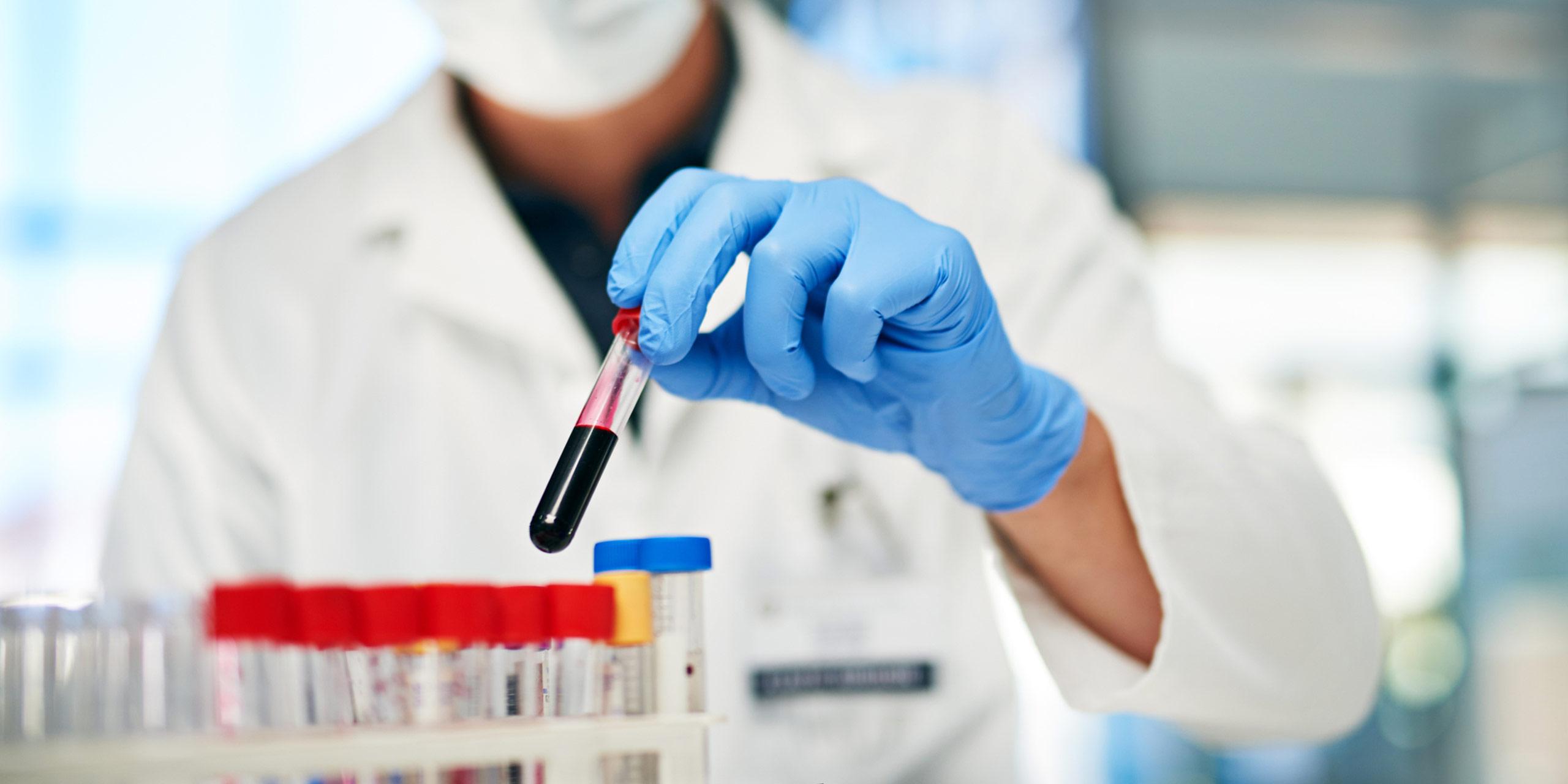 Advancing the Hematology Field