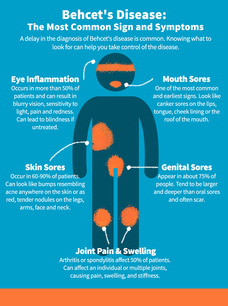 Behcets Disease Symptoms Celgene