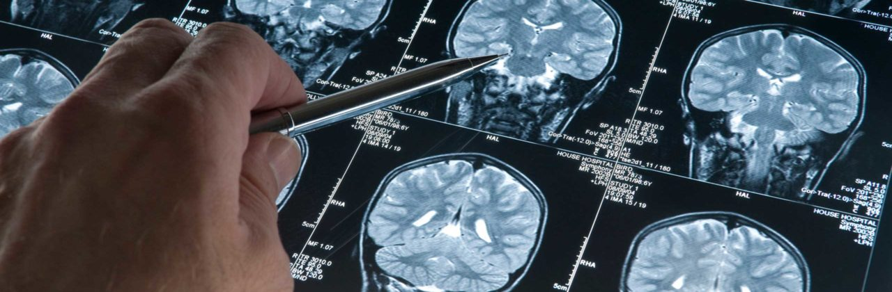 MS Progression Linked to Grey Matter Atrophy