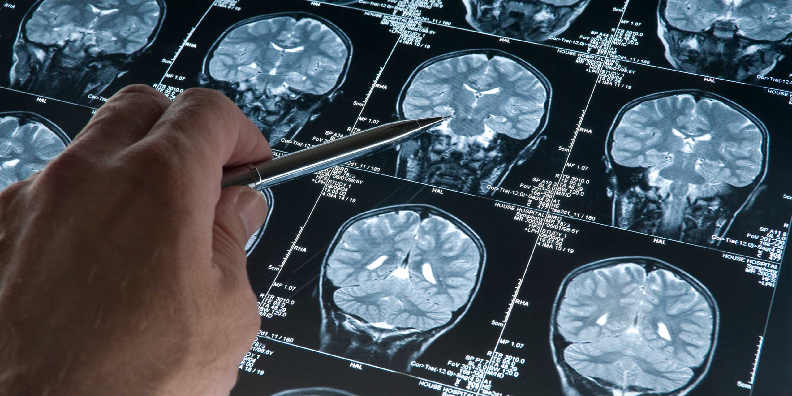 MS Progression Linked to Grey Matter Atrophy