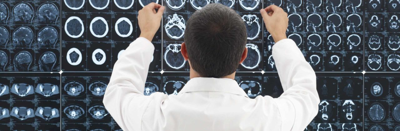 How Multiple Sclerosis Affects the Brain and CNS