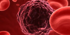 Immunotherapy May Be the Future of Myeloma Treatment