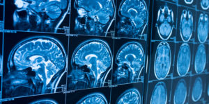 SECONDARY MEASUREMENTS SUCH AS MRI BRAINS SCANS CAN HELP MEASURE THE EFFICACY OF NEW MS TREATMENTS.