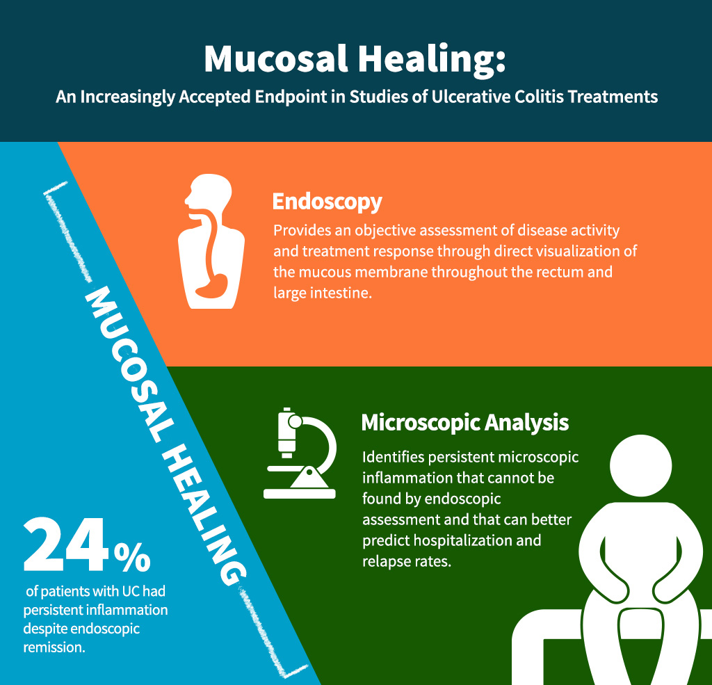 Mucosal Healing: An Increasingly Accepted Endpoint in Studies of Ulcerative Colitis Treatments