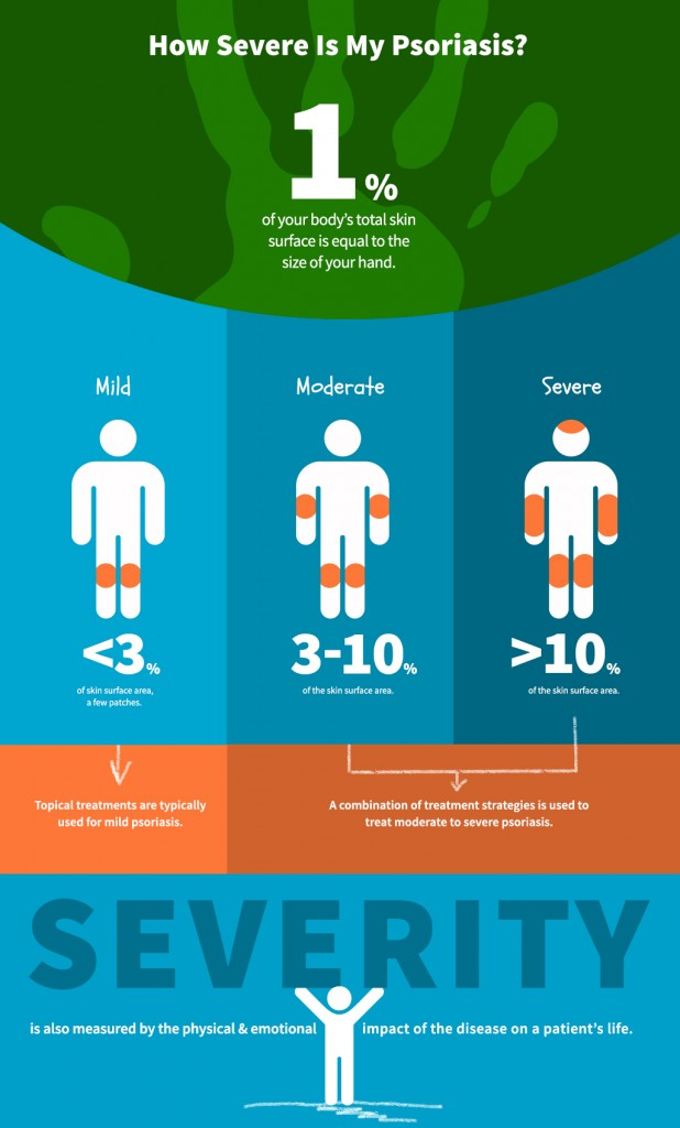 "VIEW THE COMPLETE ""How Severe Is My Psoriasis?"" INFOGRAPHIC"