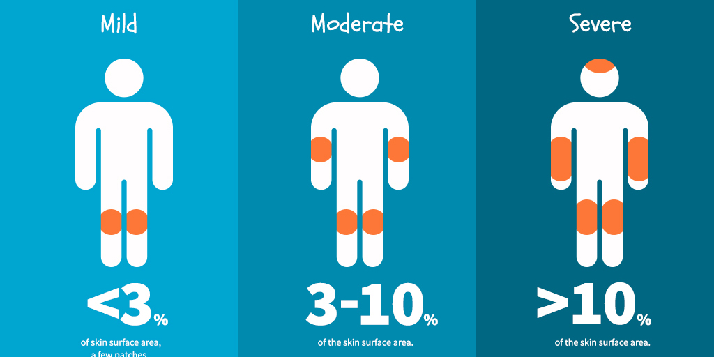 Psoriasis - mild, moderate, severe