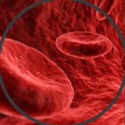 Beta Thalassemia Image