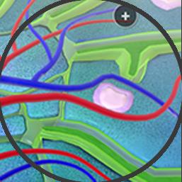 Lymphoma Image
