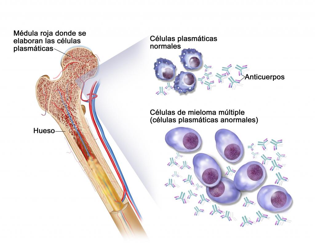 El Mieloma Múltiple afecta a ciertos linfocitos, células plasmáticas, las cuales se encuentran en la médula ósea y producen anticuerpos que provocan anemia, insuficiencia renal y lesiones óseas.