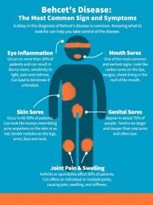 Behcets Disease Infograph